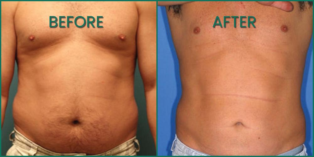 Bakırköy Liposuction Merkezleri